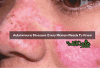 Autoimmune Diseases Every Woman Needs To Know 2