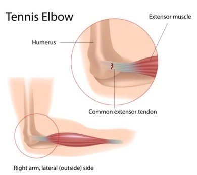 osteopathy Docklands, What is Tennis Elbow? – Osteopathy Docklands