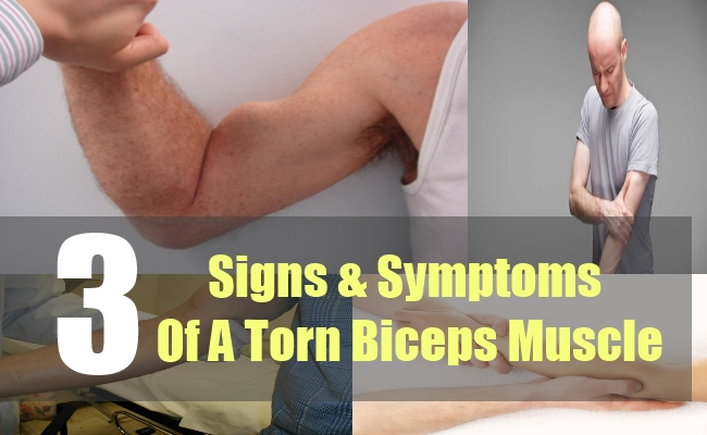 3 Signs & Symptoms Of A Torn Biceps Muscle