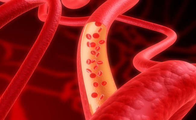 New Blood Vessels Are Generated