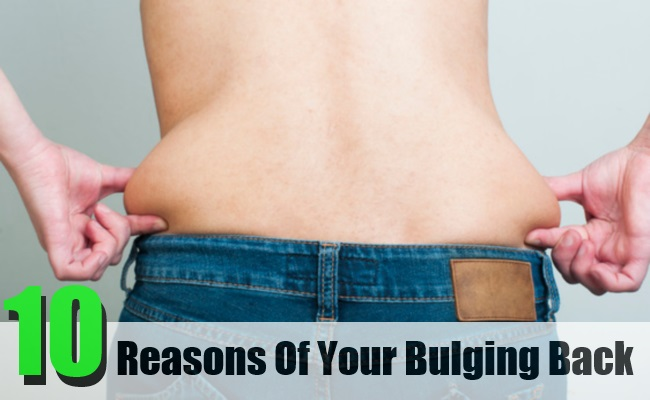 Reasons Of Your Bulging Back