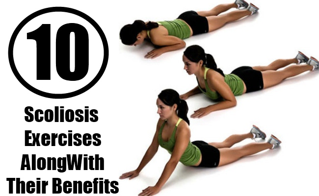 10 Scoliosis Exercises Along With Their Benefits