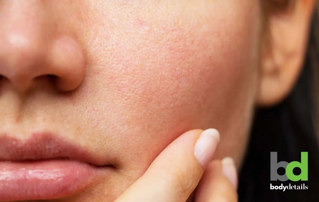 acne treatment, enlarged pores