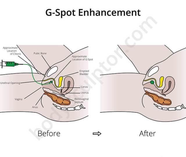 G Spot Enhancement