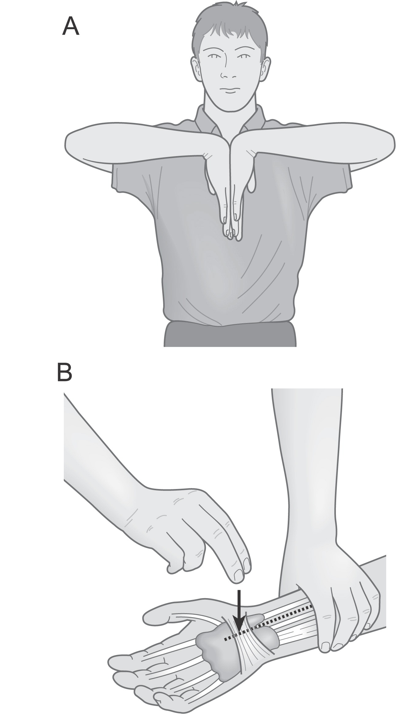 Upper Extremity Paraesthesia Clinical Assessment And Reasoning