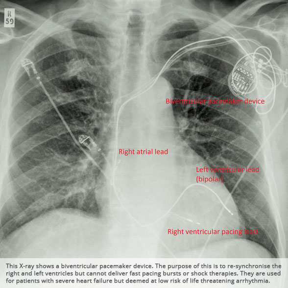 biventricular pacing for atrioventricular block and - 588×588