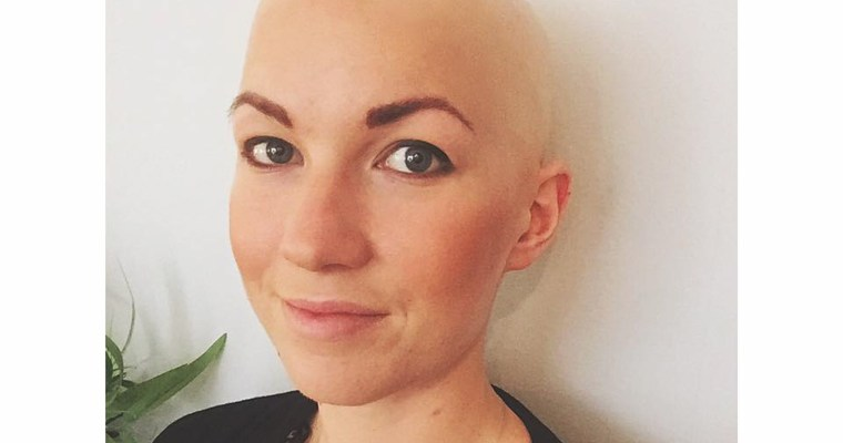 Bold-and-Baldie-of-the-Week