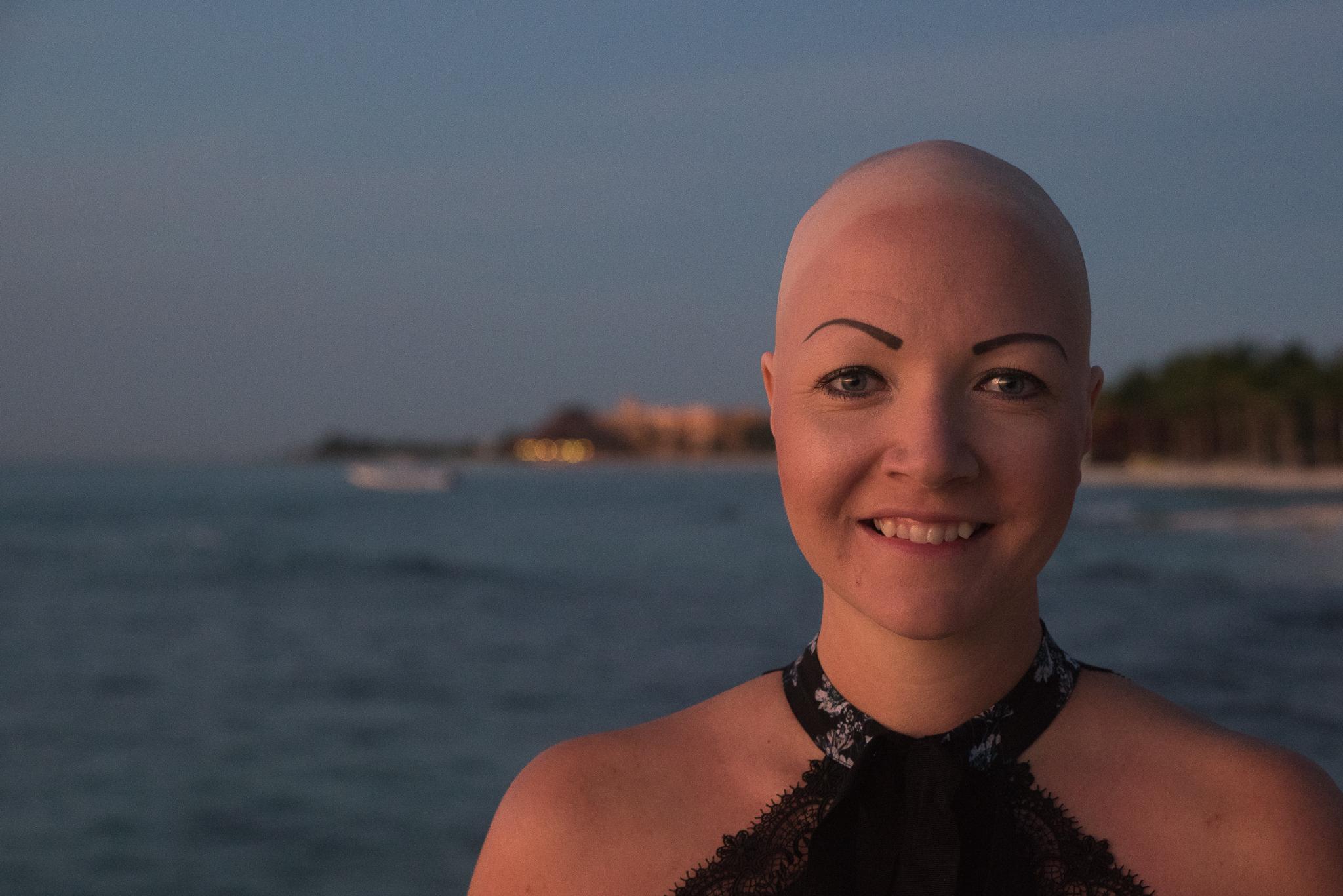 Alopecia. Vad är det?