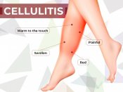 xcellulitis 1574837738.jpg.pagespeed.ic.qY0Ghz rNk