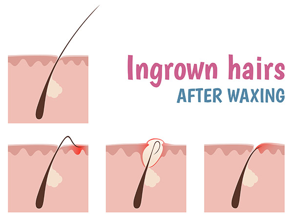 Tips To Prevent Ingrown Hair After Waxing