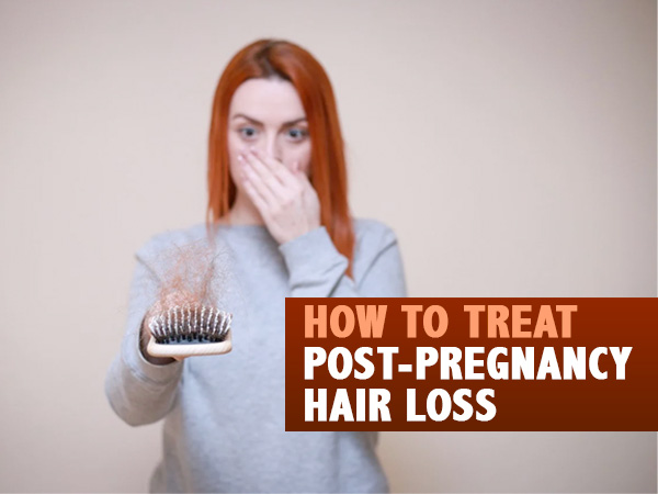 xhowtotreatpost pregnancyhairloss 1603872503.jpg.pagespeed.ic.nZ1yp3epuq
