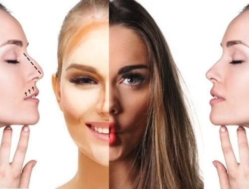 Naso perfetto senza bisturi