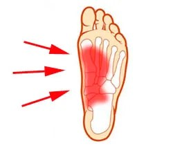 What causes arch pain after running, high heel foot in the ...