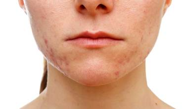 How to Get Rid of Acne Scars Permanently in 15 Days