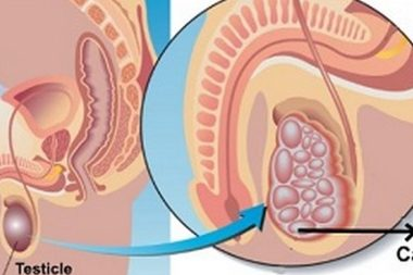Testicular Cancer Causes, Symptoms, Treatment & Prevention