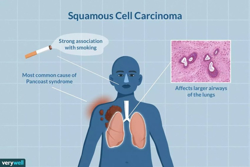 Squamous Cell Carcinoma Causes, Symptoms, Treatment & Prevention
