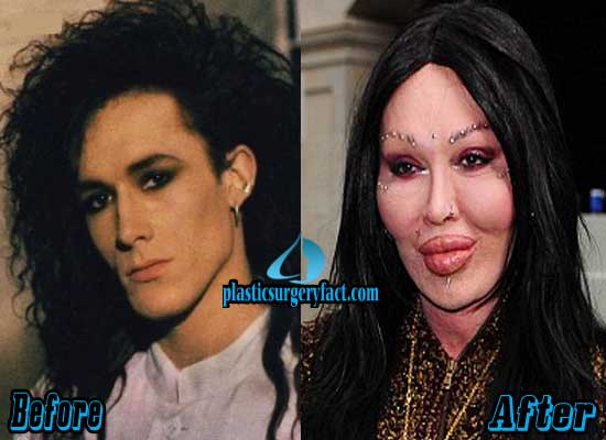 Pete-Burns-Plastic-Surgery-Before-and-After