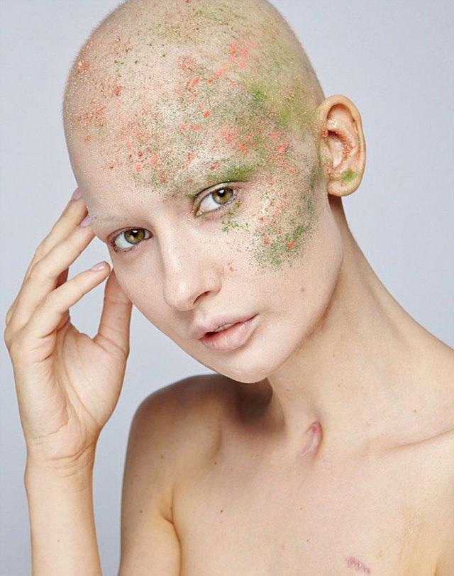 modelo-embarazada-cancer-huesos-elizaveta-bulokhova (18)