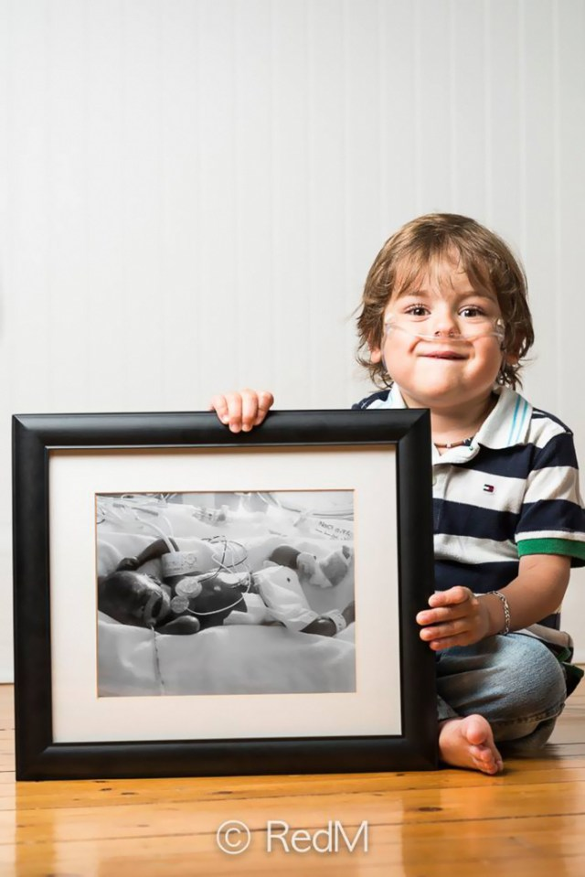 retratos-bebes-prematuros-les-premas-red-methot (7)