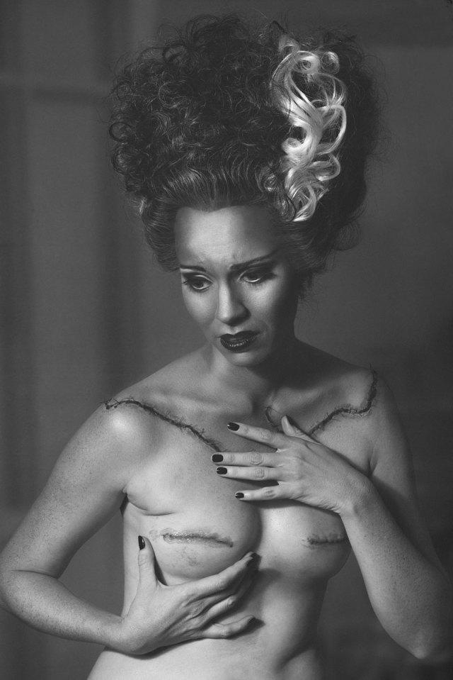 fotos-mastectomia-cancer-my-breast-choice-aniela-mcguinness (1)