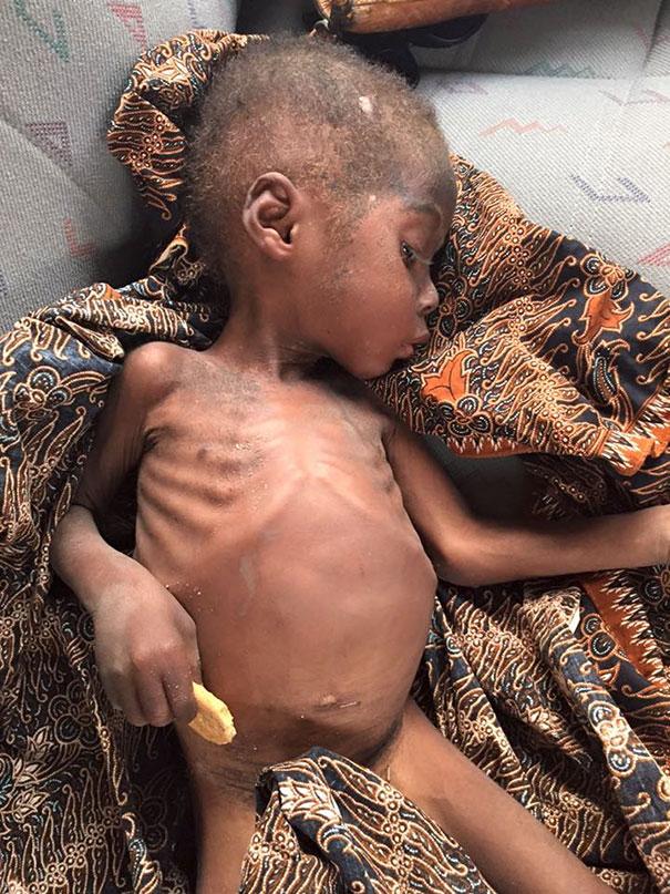nino-nigeriano-abandonado-brujo-rescatado-hope (6)