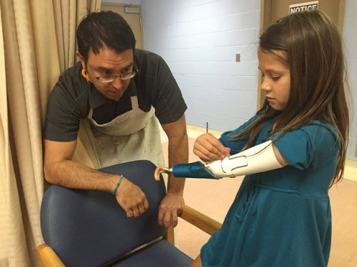 prosthetic-pediatric-elbow-congenital