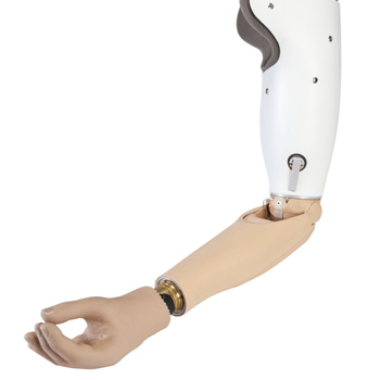 Above Elbow Myo Hand Prosthesis