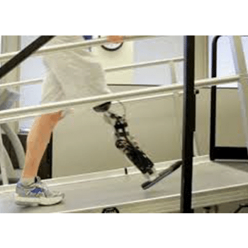 Bionic Leg for below knee