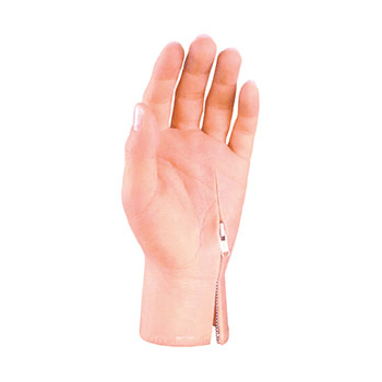 Partial Hand Prosthesis