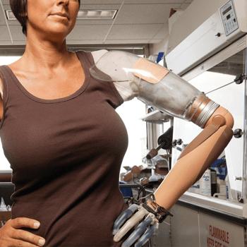 Shoulder Disarticulation Myo Hand Prosthesis.