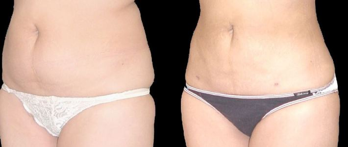 Understanding CoolSculpting and Its Benefits
