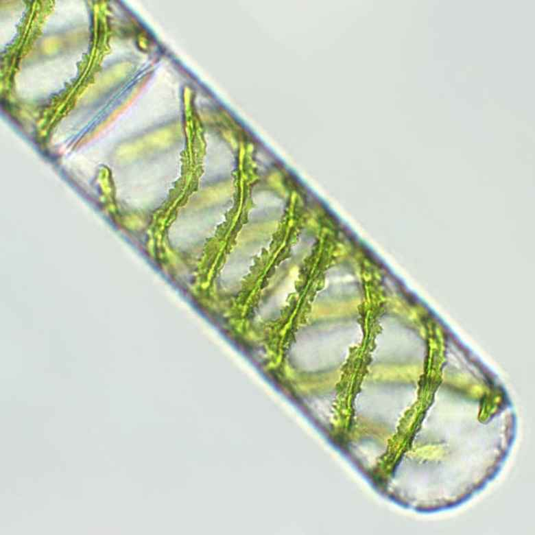 Algae under the microscope
