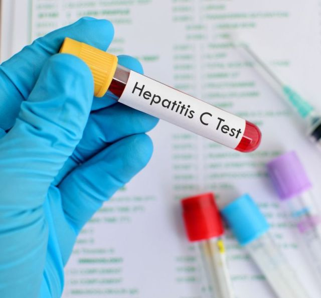 hepatita c- teste de sange
