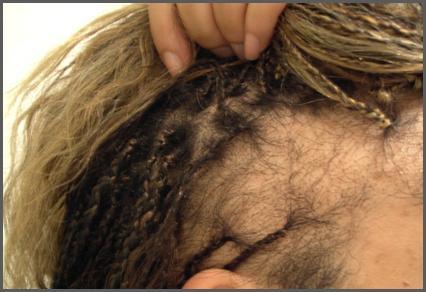 tractie alopecia