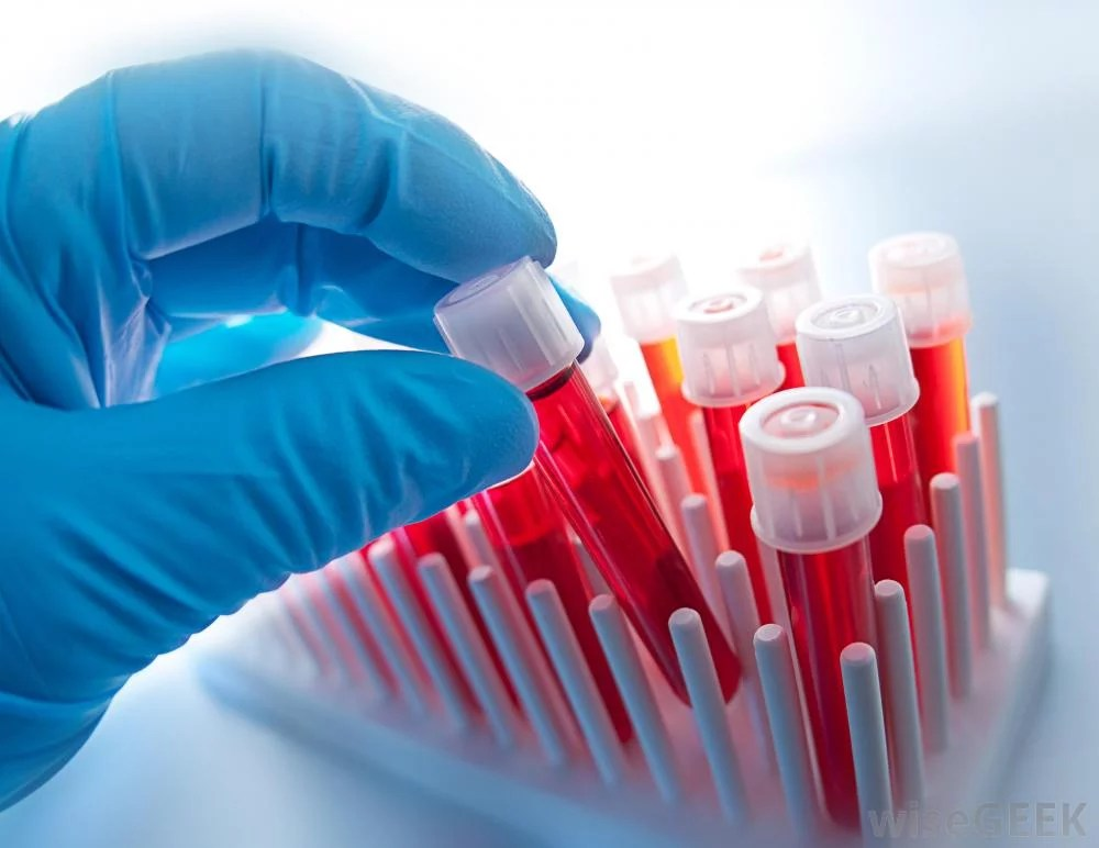 the clinical background of hemophilia Learn about hemophilia, an inherited bleeding disorder in which the blood does  not  no family history of the disease and their hemophilia is due to a new  genetic mutation  through clinical trials and research, our blood disorders  center is.