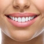 Traitement Invisalign ou appareil dentaire traditionnel : comment choisir ?