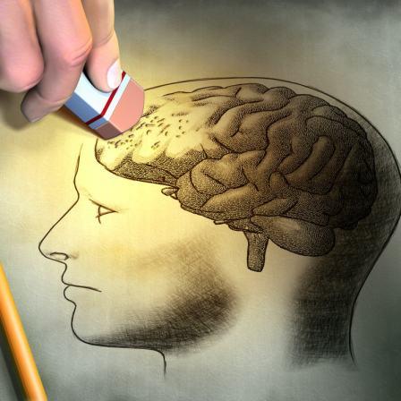另類腦退化症