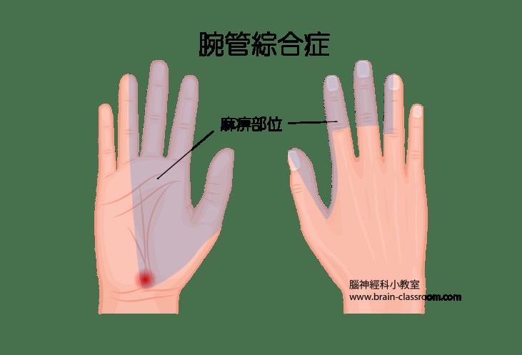 腕管綜合症