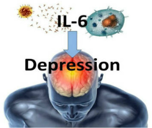 Most Read IL-6