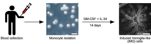 Microglia Fibromyalgia Overproducing TNF