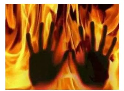 Landlord Sets Female Tenant On Fire Over N11,000 Rent In Calabar