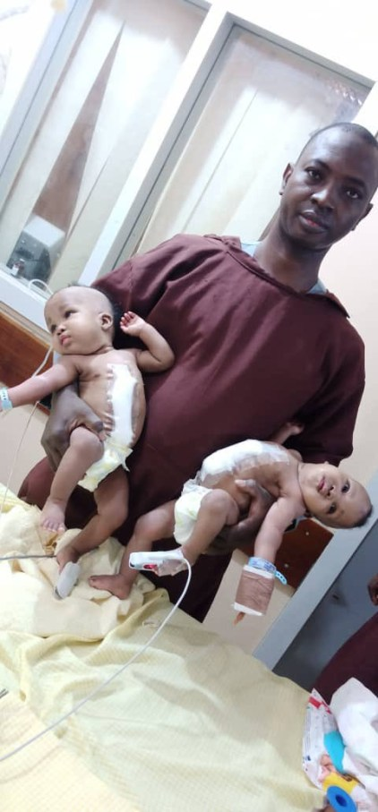 Conjoined Twins Separated At The University Of Ilorin Teaching Hospital