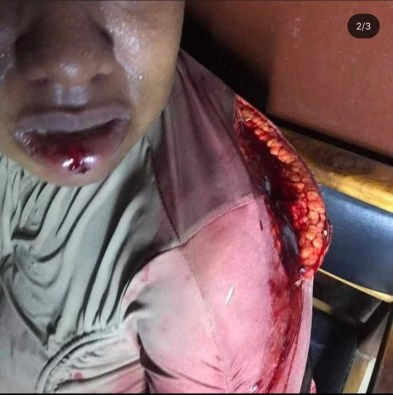 Man Butchers His Baby Mama Over Food In Imo