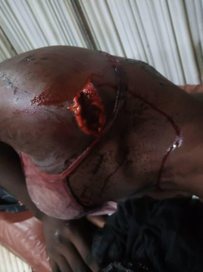 Suspected Herdsmen Invade Farm Settlement, Machete 3 Women In Ekiti