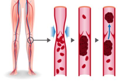 Symptoms, Causes, Diagnoses & Treatment Of Deep Vein Thrombosis