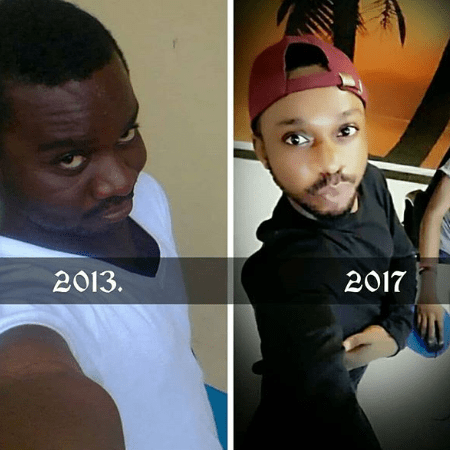 Man Boasts After Bleaching His Skin On Social Media