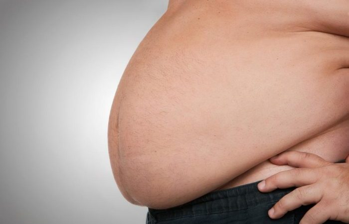 672m People Affected With Obesity - Africa Increasing Faster Than Any Other Region - FAO