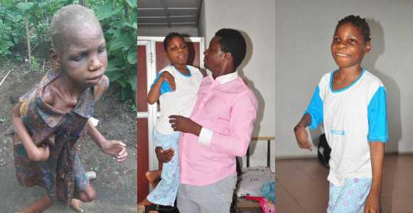 Little Girl With Cerebral Palsy Who Was dumped In A Pit Latrin By Her Mother