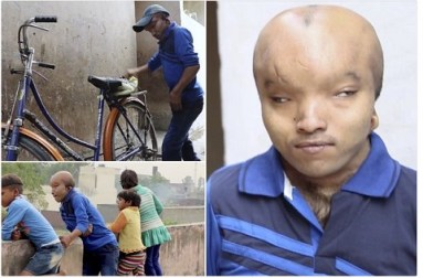 Man With 'Alien Head' Cries Out As He Can't Find Love Due To His Condition