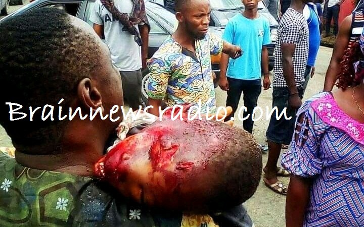 See Photos As Dangote Truck Crushes 4-year-old Boy To Death In Calabar